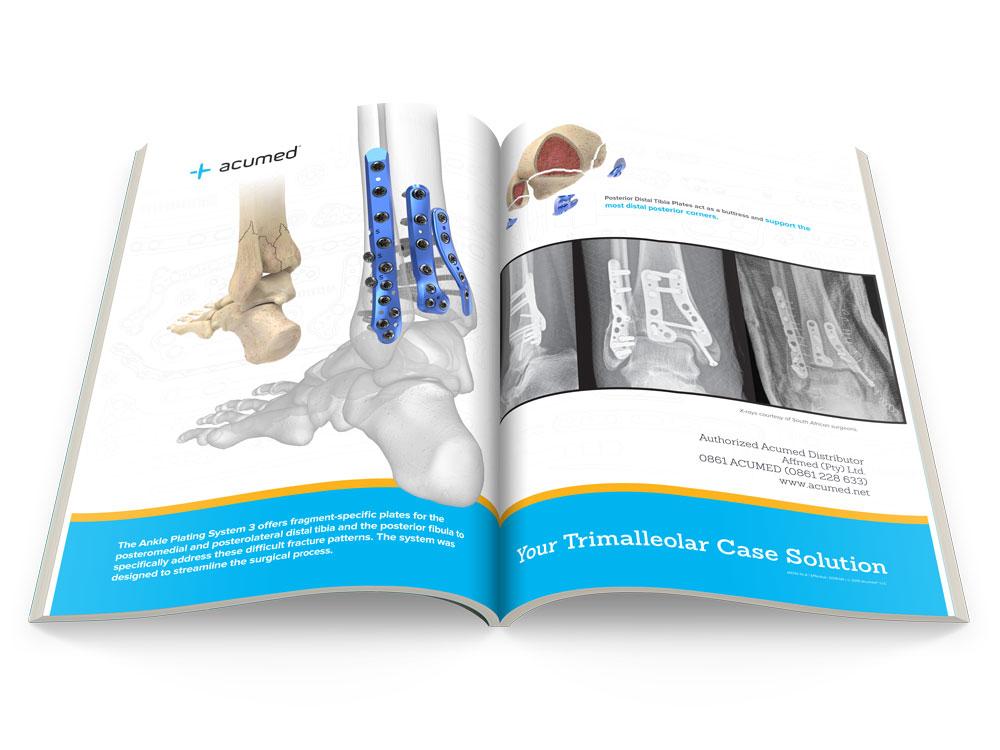 Your Trimalleolar Case Solution